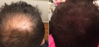 toppik hair building works baldtruthtalk com
