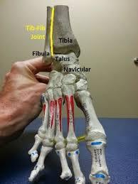 High Ankle Sprain Anatomy Best 10 High Ankle Sprain Ideas On Pinterest Emergency