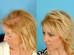 thinning hair in women on top of head eek hair loss in women top 7 risk factors revealed photo 1