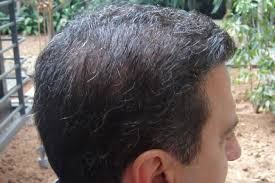 getting fullness on the hair crown hair transplant for the crown should it come before a hairline
