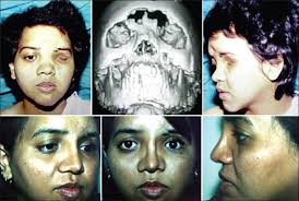 unfavourable outcomes in maxillofacial injuries how to avoid and