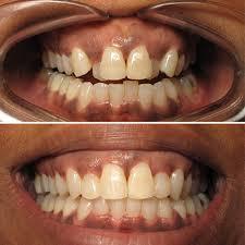 traders point dental