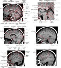Ct Anatomy Of Brain Ppt Normal Anatomy Of The Brain On Ct And Mri With A Few Normal