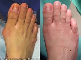 Comfortable High Heels For Bunions Would You Have U0027cinderella Surgery U0027 Rise In Women Changing The