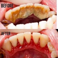 the red gums will recover quickly now that the bacteria and