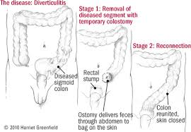 diverticular disease of the colon harvard health