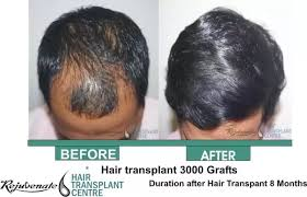 transplant hair second round draft how much costly is hair transplant in india and are there any