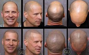 scalp tattoos giving bald the illusion of hair