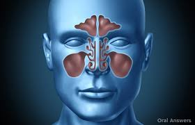 can sinus infection cause dizziness light headed can a sinus infection be caused by a tooth oral answers