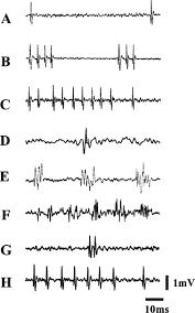 neurogenesis in injury induced self repair use it or lose