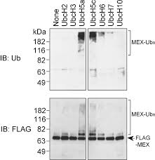 mex is a testis specific e3 ubiquitin ligase that promotes death
