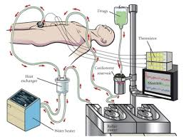 canula fiore continuous hyperthermic peritoneal perfusion chpp the chpp