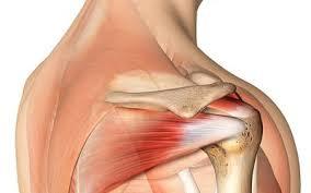 Rotator Cuff Injury From Bench Press Injured Rotator Cuff Of The Shoulder