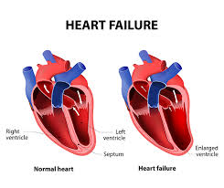 heart racing and light headed the 4 heart problem symptoms you shouldn t ignore university