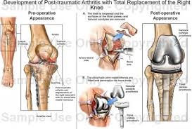 Right Knee Anatomy Development Of Post Traumatic Arthritis With Total Replacement Of