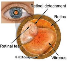 The Blind Spot In The Eye Is Due To Lattice Degeneration Causes Treatments And Surgery