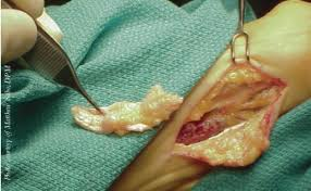 Planters Fasciitis Surgery by Pin By Jac Ncourageu On Plantar Fasciitis Pinterest Plantar