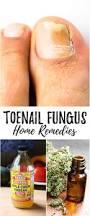 the 25 best cure for toenail fungus ideas on pinterest toe