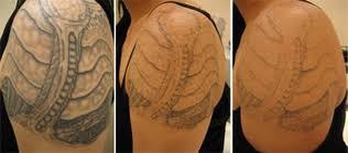 tattoo removal sin on skin tattoo studio