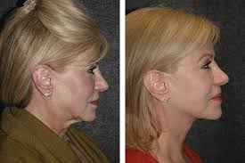 hairstyles that cover face lift scars revision facelift new york ny