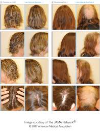 Is Hair Loss A Sign Of Cancer Scalp Cooling Device May Help Reduce Hair Loss For Women With