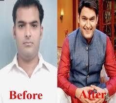 ranbir kapoor hair transplant amitabh bachchan hair weaving images hair extension hair