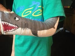 best 25 broken arm cast ideas on pinterest arm cast iron man