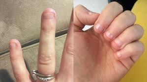 can u0027t stop biting your nails try getting them shellacked