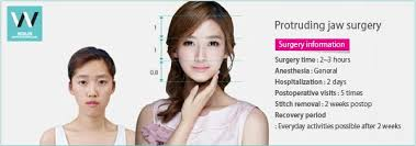 hair styles for protruding chin protruding jaw surgery for jaw and facial outline improvements at