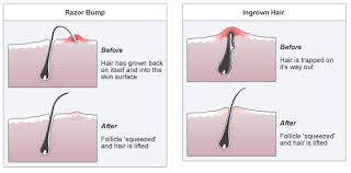 razor bumps and ingrown hair barber eile s blog barber eile