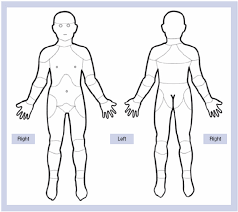 pain body suggested pain chart for studies of recurrent and chronic pain