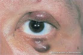 Diseases Of The Eye That Cause Blindness How Does Hiv Aids Affect The Eye American Academy Of Ophthalmology