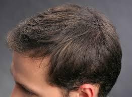 M舅nerfrisuren D Ne Haare by Richtige Anwendung Bei Kurzen Dünnen Haaren Flache Frisur