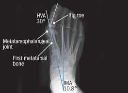 Anatomy Of A Foot What To Do About Bunions Harvard Health