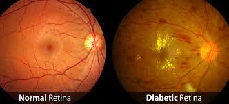 Diabetic Blindness Diabetic Retinopathy Dallas Tx Saland Vision