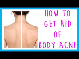 faq how to get rid of acne back acne chest acne leg acne