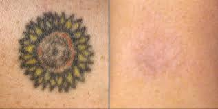natural tattoo removal how to remove tattoos naturally