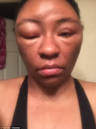 chemese armstrong shares photos after allergic reaction to henna