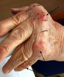 knoten handinnenfläche häufige fragen zur rheuma