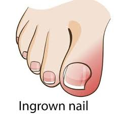 how to get rid of an ingrown toenail the natural way