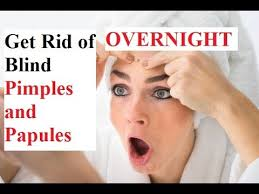 Blind Pimples On Chin How To Get Rid Of Blind Pimples And Papules Overnight Get Rid Of
