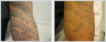 100 precision tattoo removal 15 best tattoo removal images