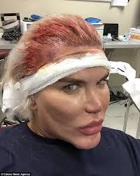 paddy mcguinness hair implants human ken doll rodrigo alves has 19k hair transplant daily mail