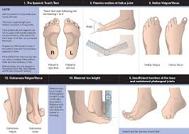 diabetic foot ulcer the foot and ankle online journal