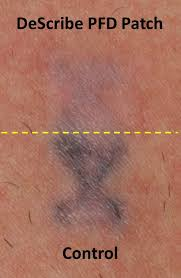 pfd patch improves laser tattoo removal the aesthetic channel