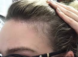 rogaine for women success stories minoxidil and lllt journey dread shed heralopecia forums