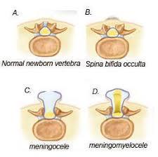 neonatal spine sonography ultrasound tips u0026 tricks