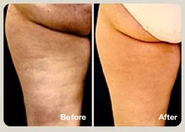 red light therapy cellulite medspa 29 before and after