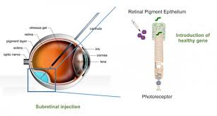 Gene Therapy For Blindness French Gene Therapy Startup For Retinal Diseases Raised U20ac4m