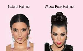 how wide is a normal hairline part virgin brazilian hair kinky curl affordable lace front wigs good